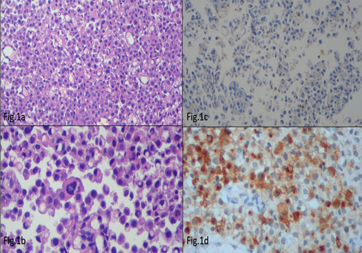 Figure 1 Immunohistochemical markers and images used in diagnosis of differential diagnosis of plasmocytic variant